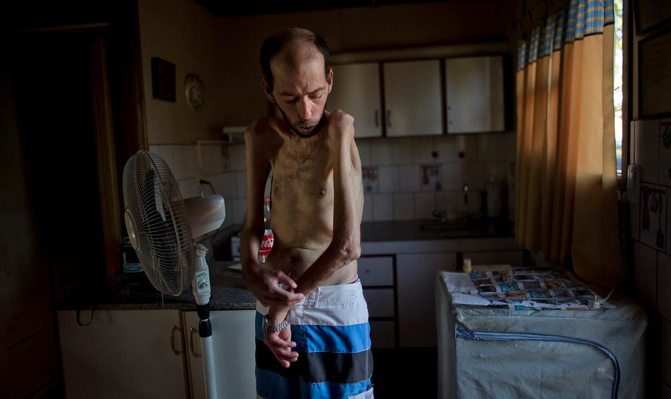 In this March 29, 2013, photo, former farmworker Fabian Tomasi, 47, shows the condition of his emaciated body as he stands inside his home in Basavilbaso, in Entre Rios province, Argentina. Tomasi's job was to keep the crop dusters flying by quickly filling their tanks but he says he was never trained to handle pesticides. Now he is near death from polyneuropathy.