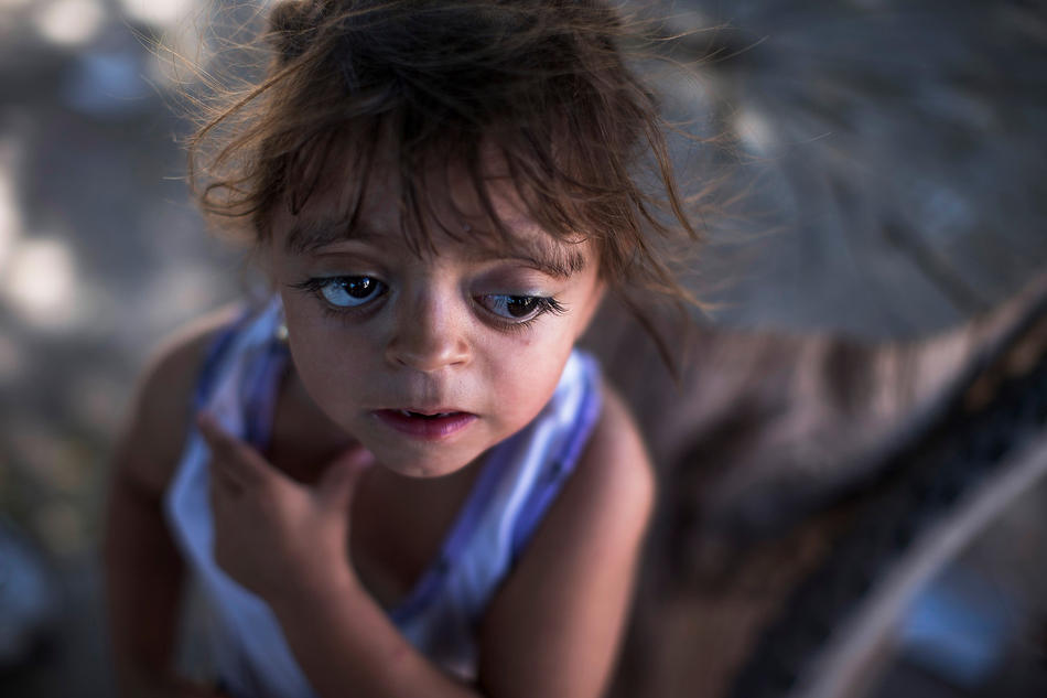 "In this March 31, 2013, photo, Camila Veron, 2, born with multiple organ problems and severely disabled, stands outside her home in Avia Terai, in Chaco province, Argentina. Doctors told Camila's mother, Silvia Achaval that agrochemicals may be to blame. It's nearly impossible to prove that exposure to a specific chemical caused an individual's cancer or birth defect, but doctors say these cases merit a rigorous government investigation. ""They told me that the water made this happen, because they spray a lot of poison here,"" said Achaval. (AP Photo/Natacha Pisarenko)"